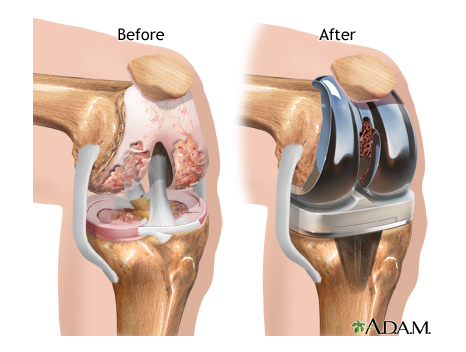 knee replacement before and after